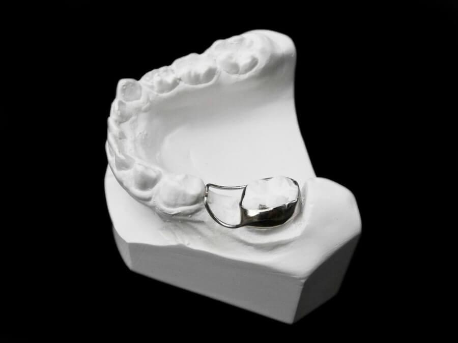 band loop orthodontic laboratory