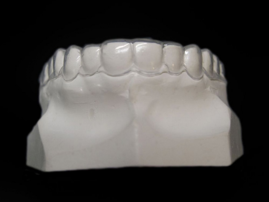 bleaching tray orthodontic laboratory