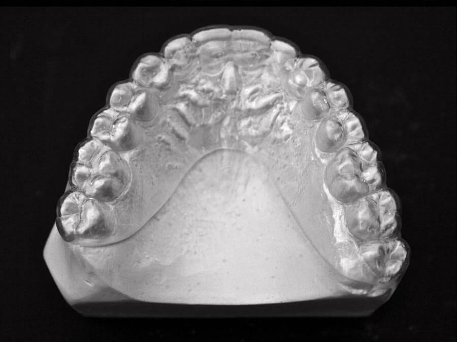 essix cdorthostudio orthodontic lab