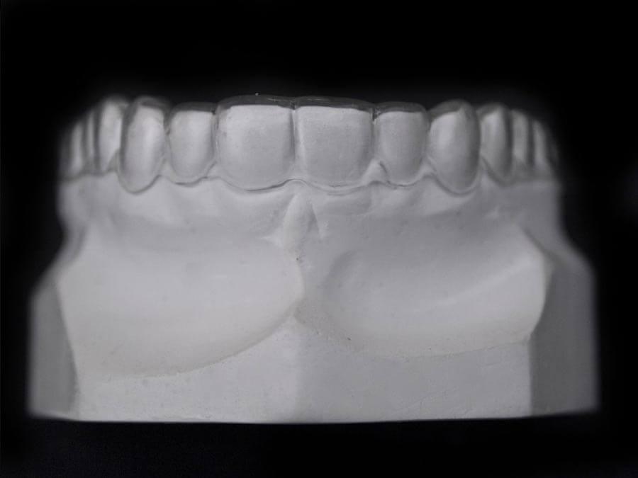 essix dental lab