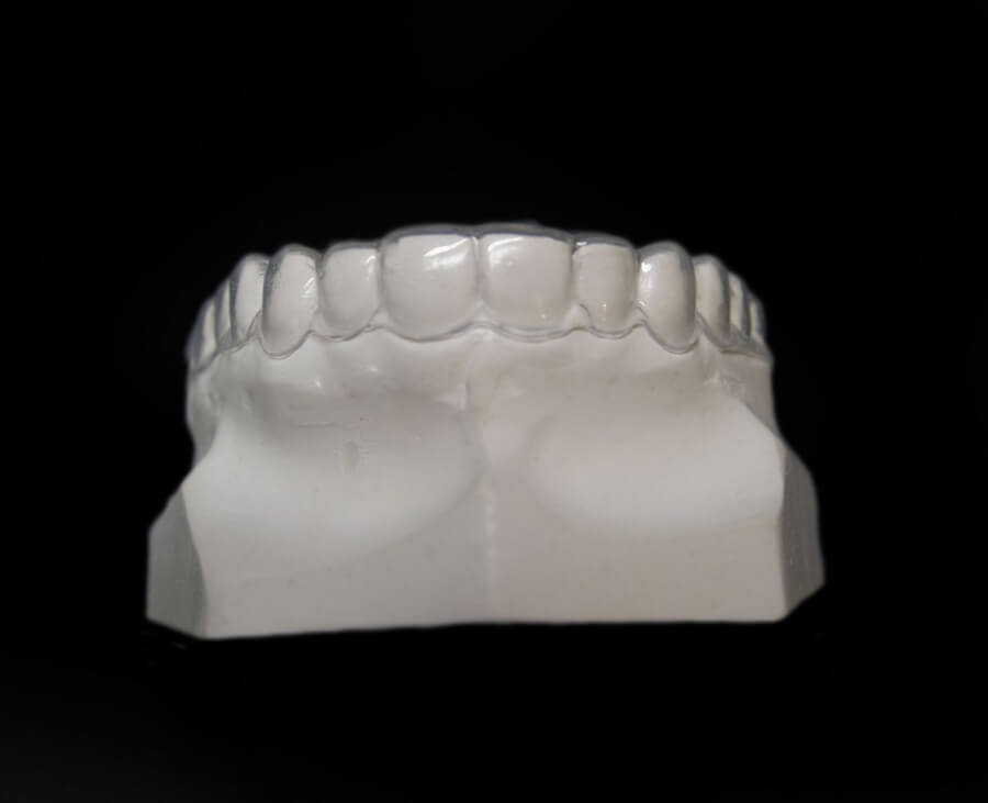 essix retention orthodontic lab