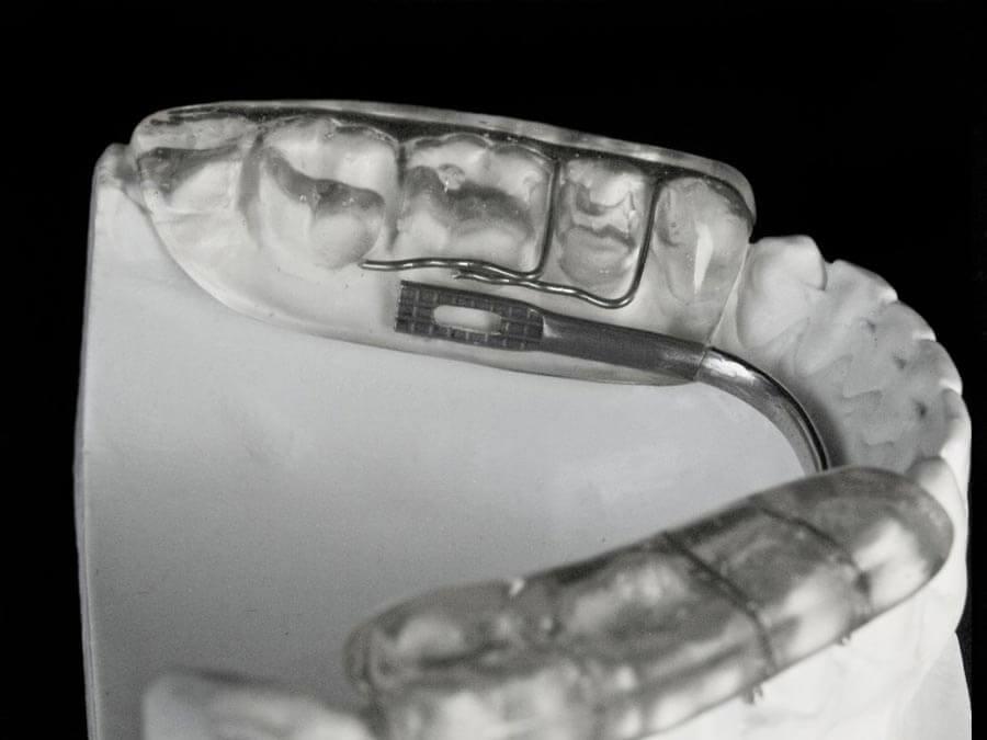 gelb splint orthodontic lab