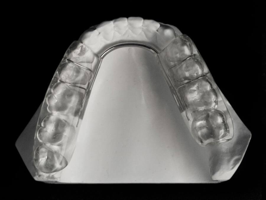 gelb splint orthodontic laboratory