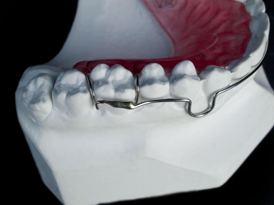 hawley cdorthostudio dental lab