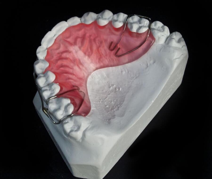 hawley dental lab