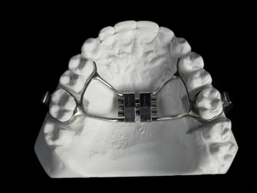 hyrax dental lab