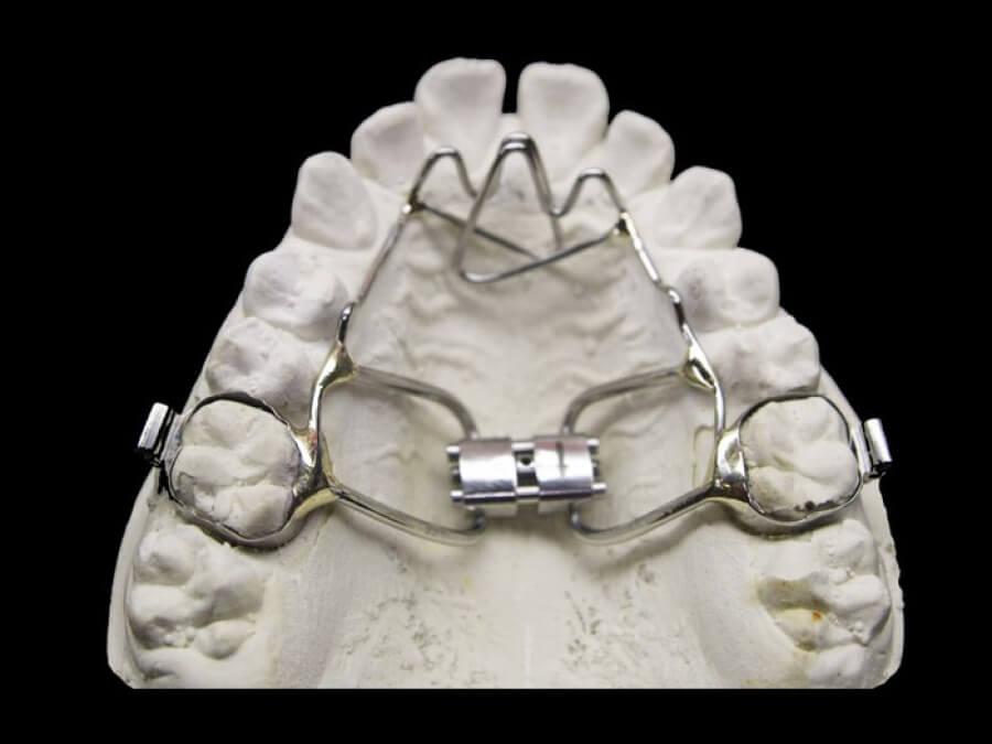 hyrax orthodontic lab