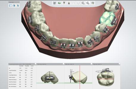 indirect bracketing dental lab