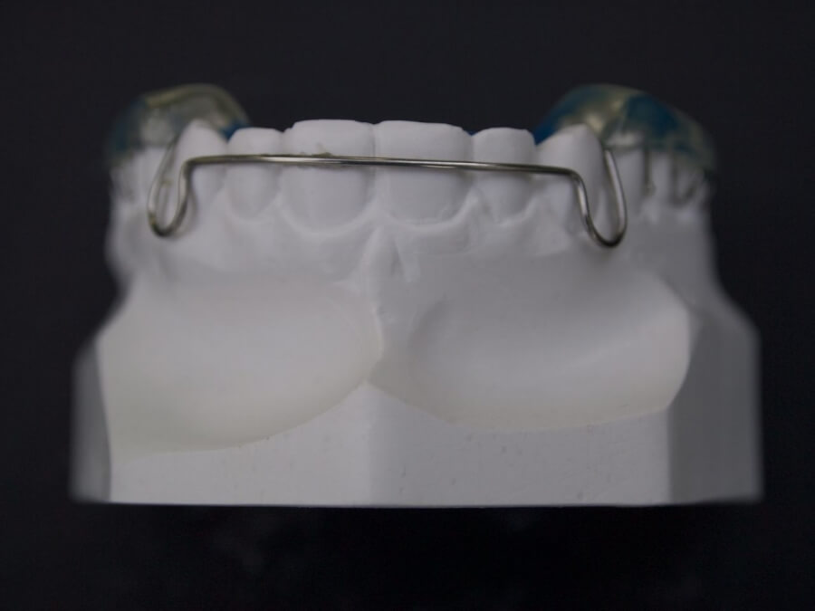 labial bow orthodontic lab