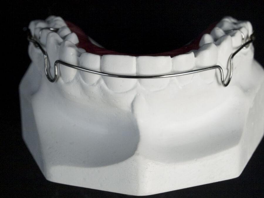 labial bow orthodontic laboratory