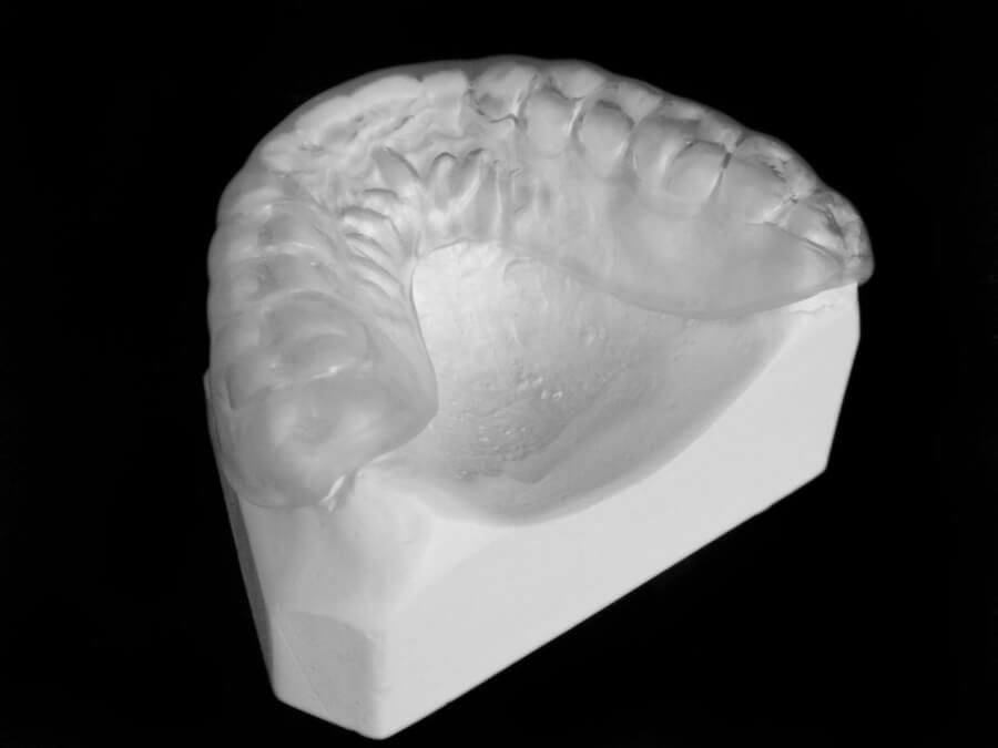 mouthguard orthodontic laboratory toronto