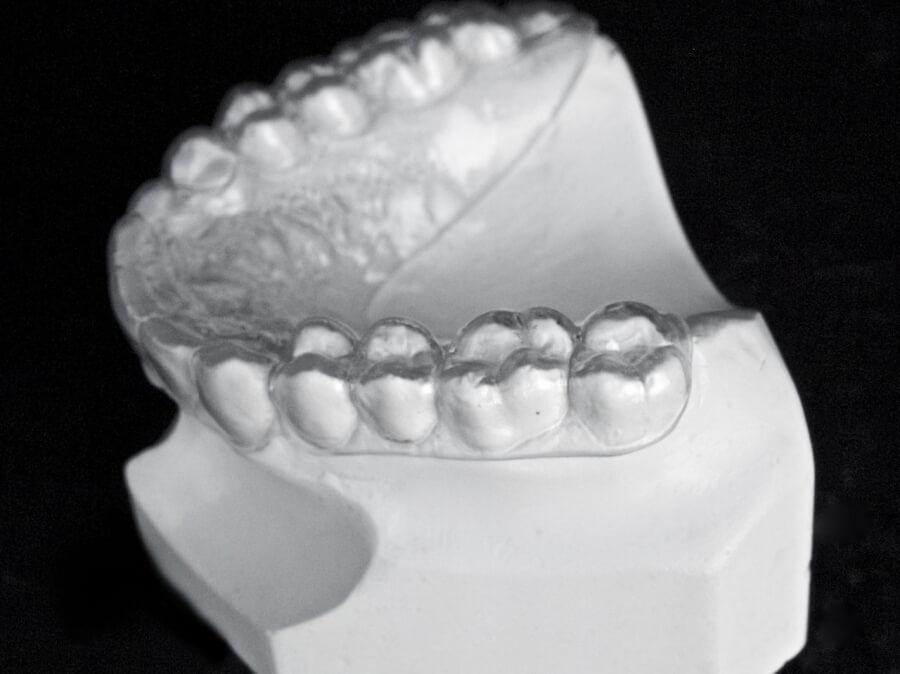 orthodontic laboratory essix