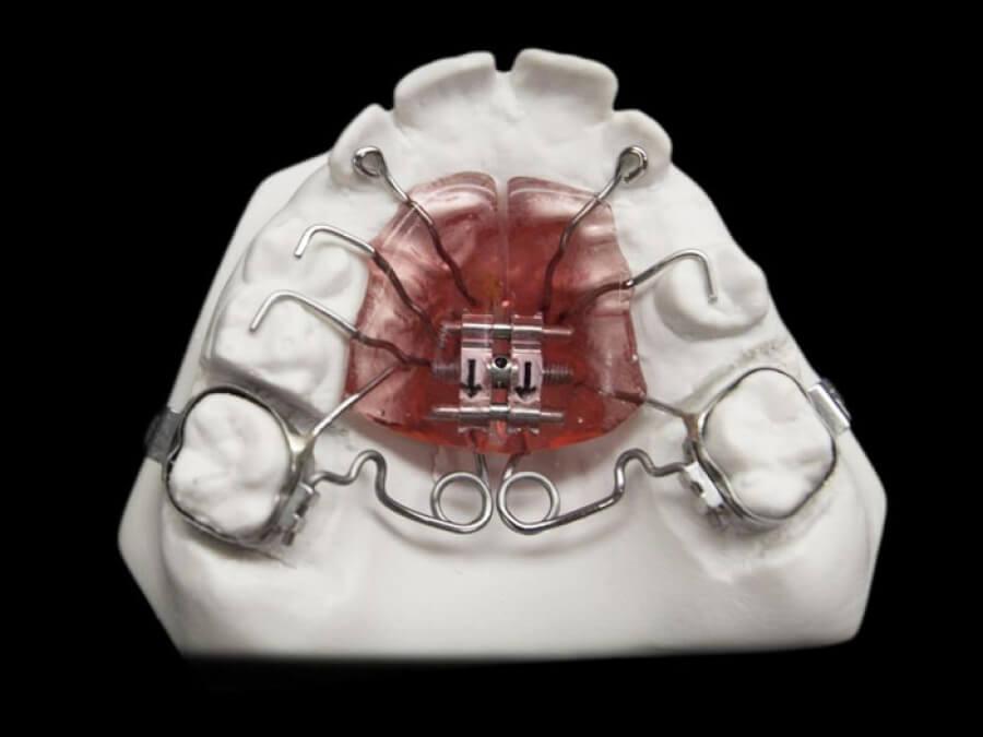 pendex orthodontic laboratory
