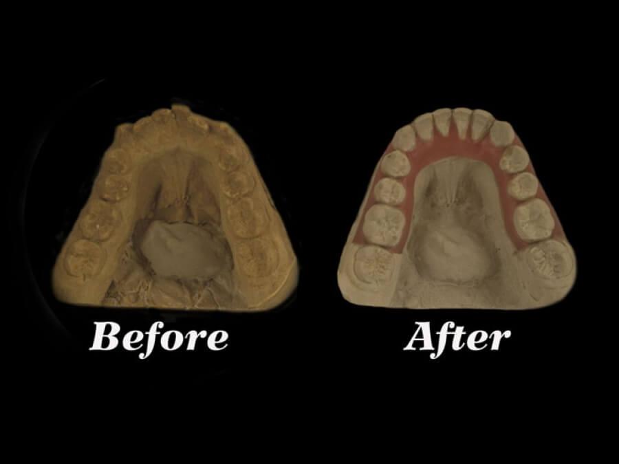 setup dental lab