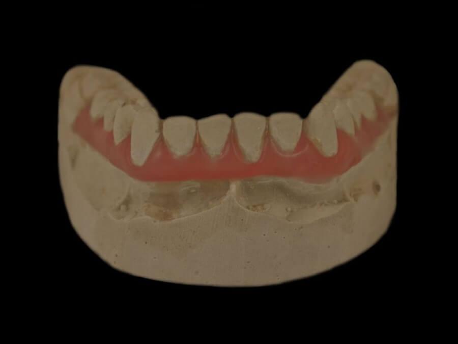 setup orthodontic lab