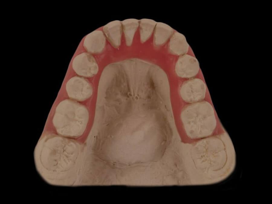 setup orthodontic laboratory toronto