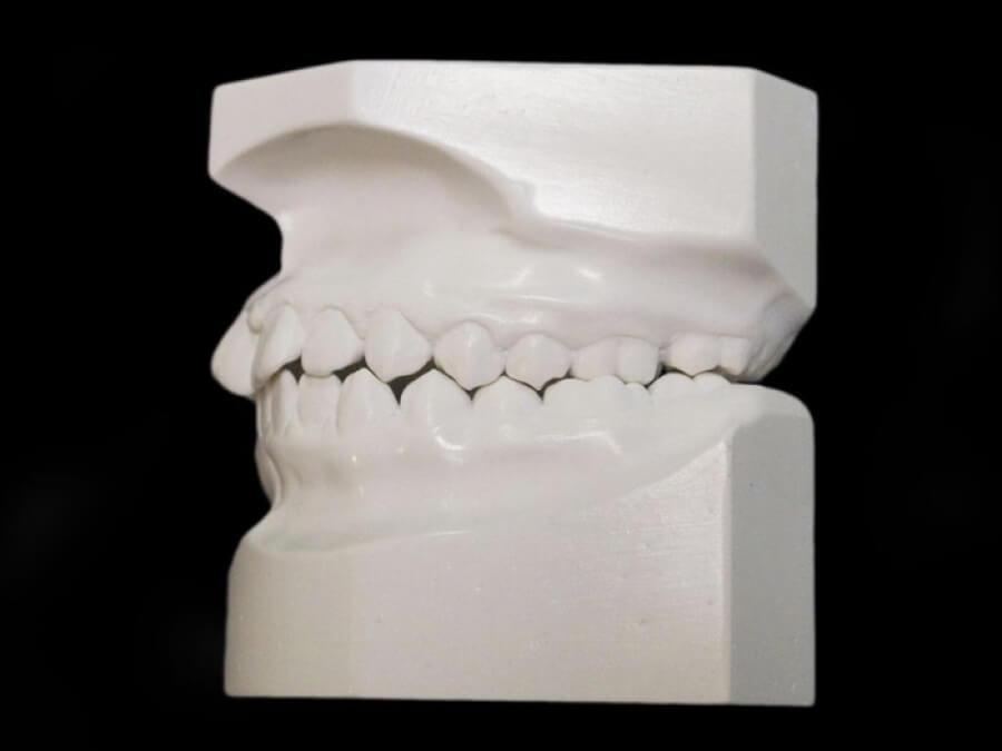 study model orthodontic laboratory toronto