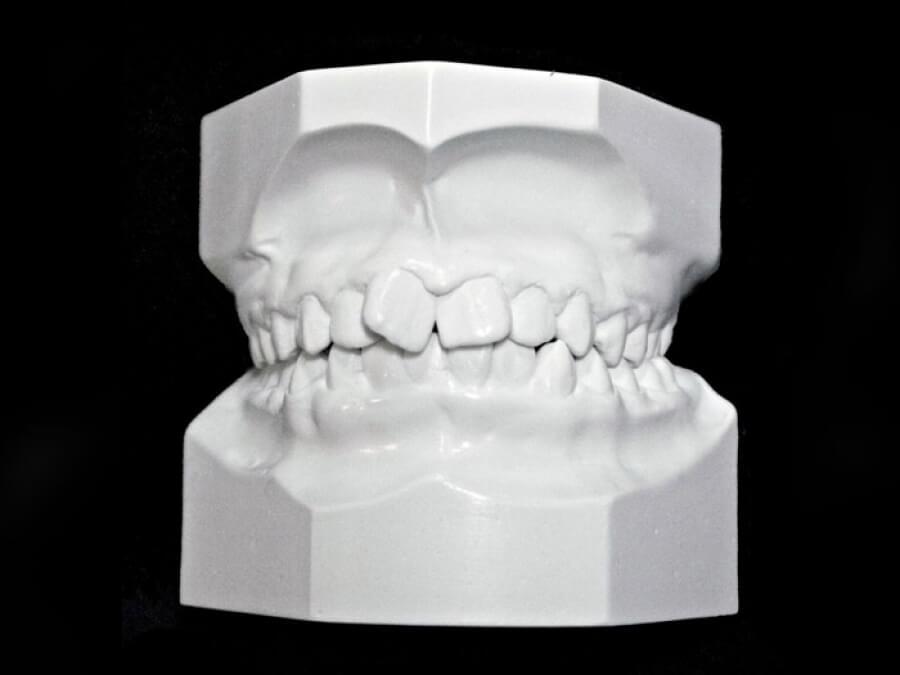 study model orthodontic laboratory