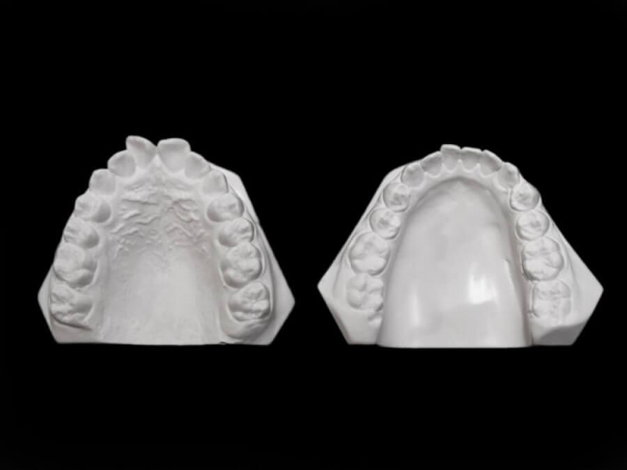 study models orthodontic laboratory
