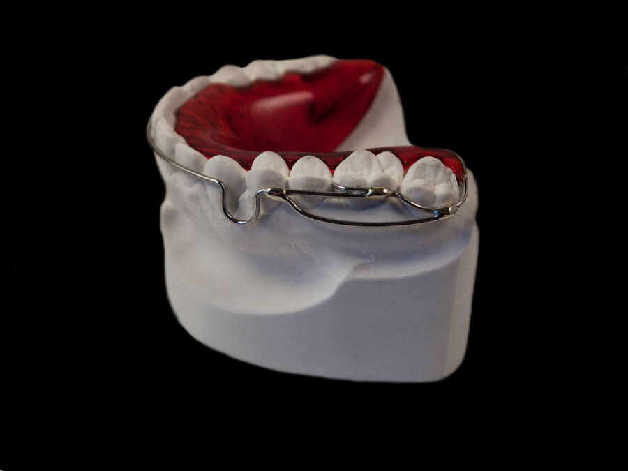 tremont hawley orthodontic lab
