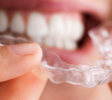 best material for clear aligners dental lab
