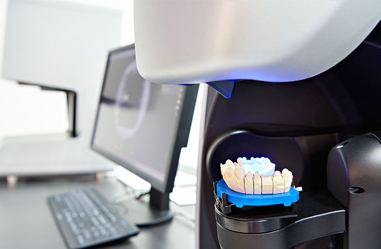 Vancouver digital orthodontic lab