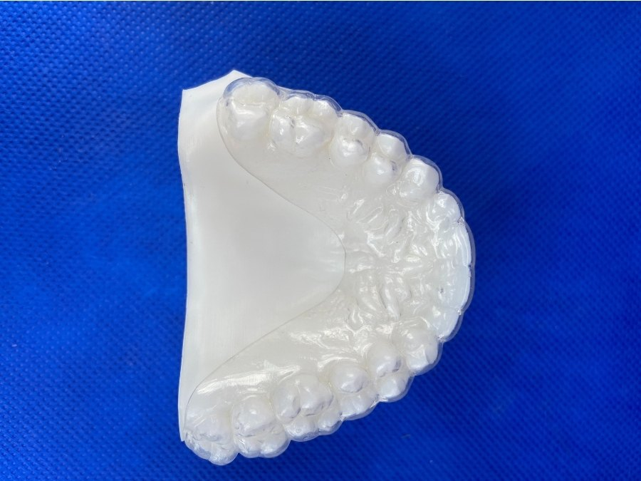 Image depicts an essix orthodontic appliance.