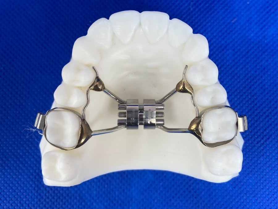 Image depicts a palatal expander development orthodontic appliance.