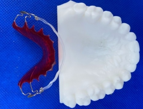Image depicts a retention orthodontic appliance.